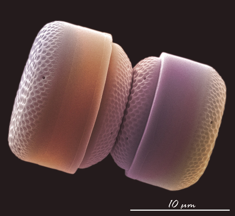 nanoplancton calcareo FOTCIENCIA